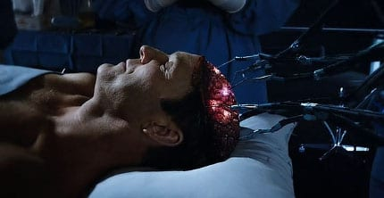 Agent Coulson Surgery